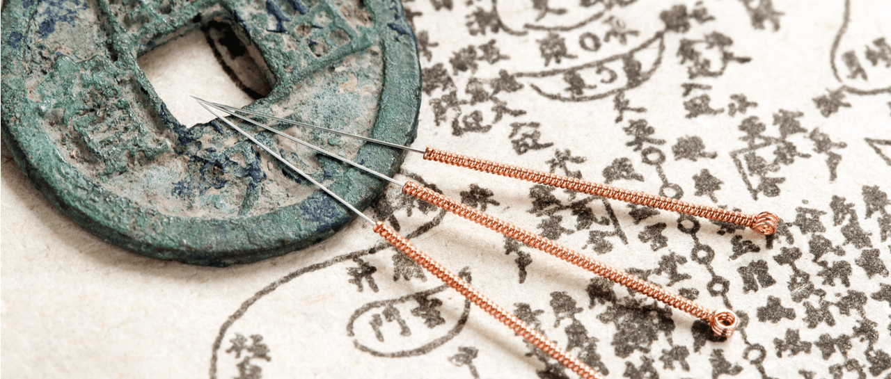 The Benefits of Acupuncture: How Does Acupuncture Help You?